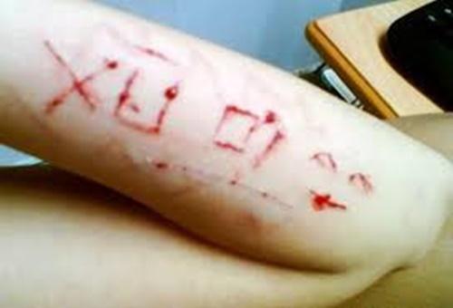 Hình ảnh rạch tay thật chảy máu bằng lưỡi lam 12
