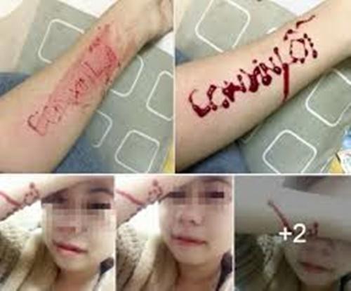 Hình ảnh rạch tay thật chảy máu bằng lưỡi lam 7